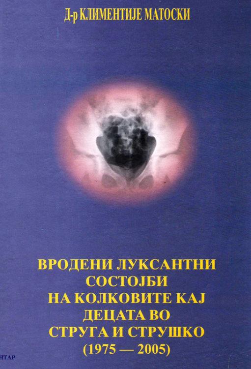 Вродени Луксантни Состојби на Колковите кај Децата во Струга и Струшко (1975-2005)